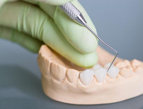 Quels sont les différents types de prothèses dentaires?