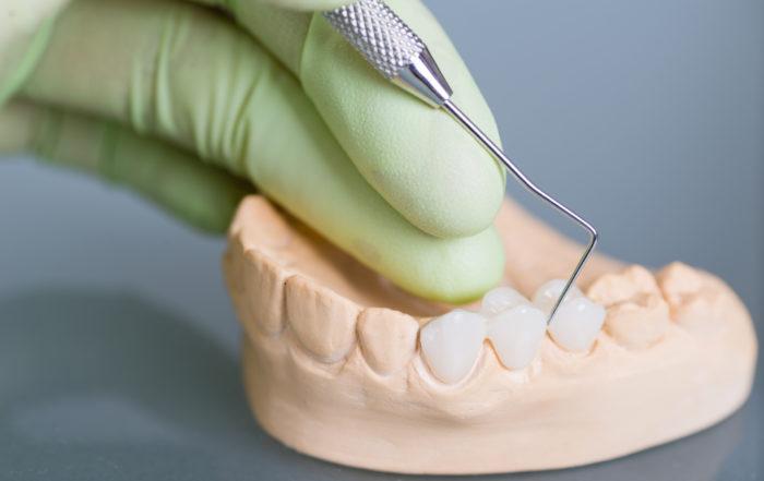 types prothèses dentaires - Clinique Dentaire Charles Trottier