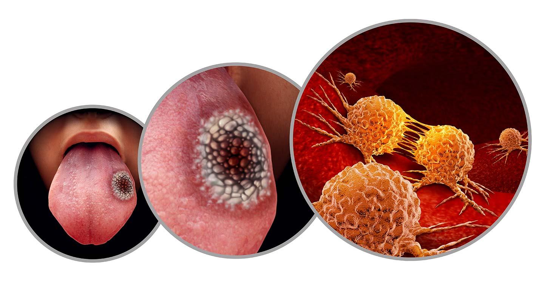 dépistage du cancer de la bouche