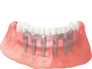 prothèse sur implants dentaires