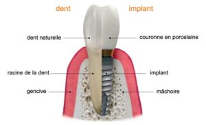 dents naturelles vs implants