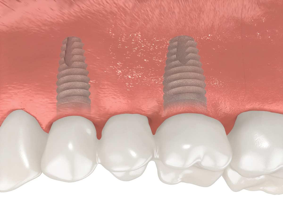 couronnes sur implants