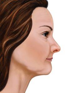 profil après la perte de dents