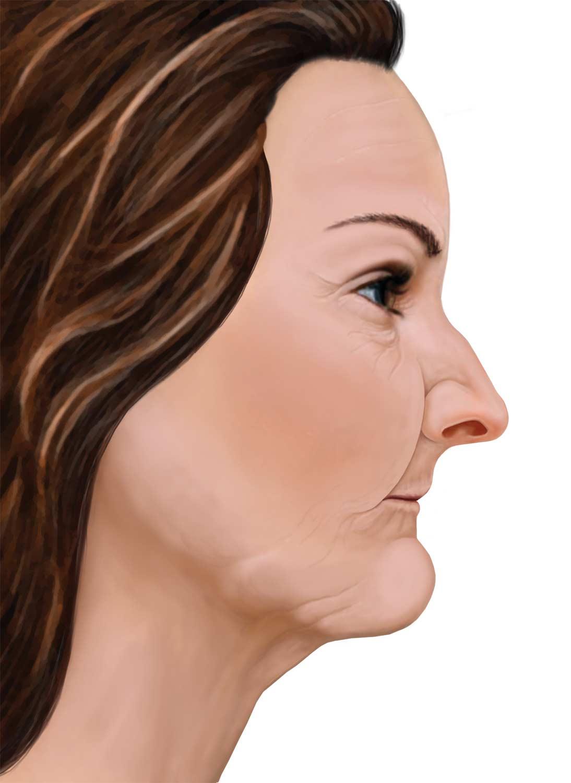 profil après la perte osseuse
