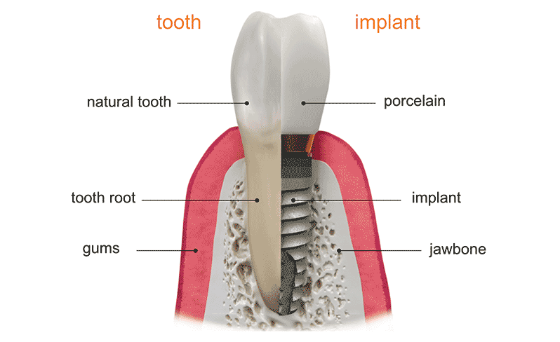 natural teeth vs implants
