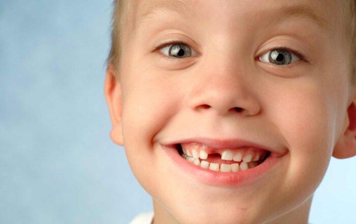 enfant perd ses dents à quel âge