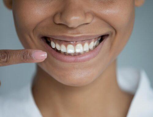 Causes et solutions aux taches blanches sur les dents