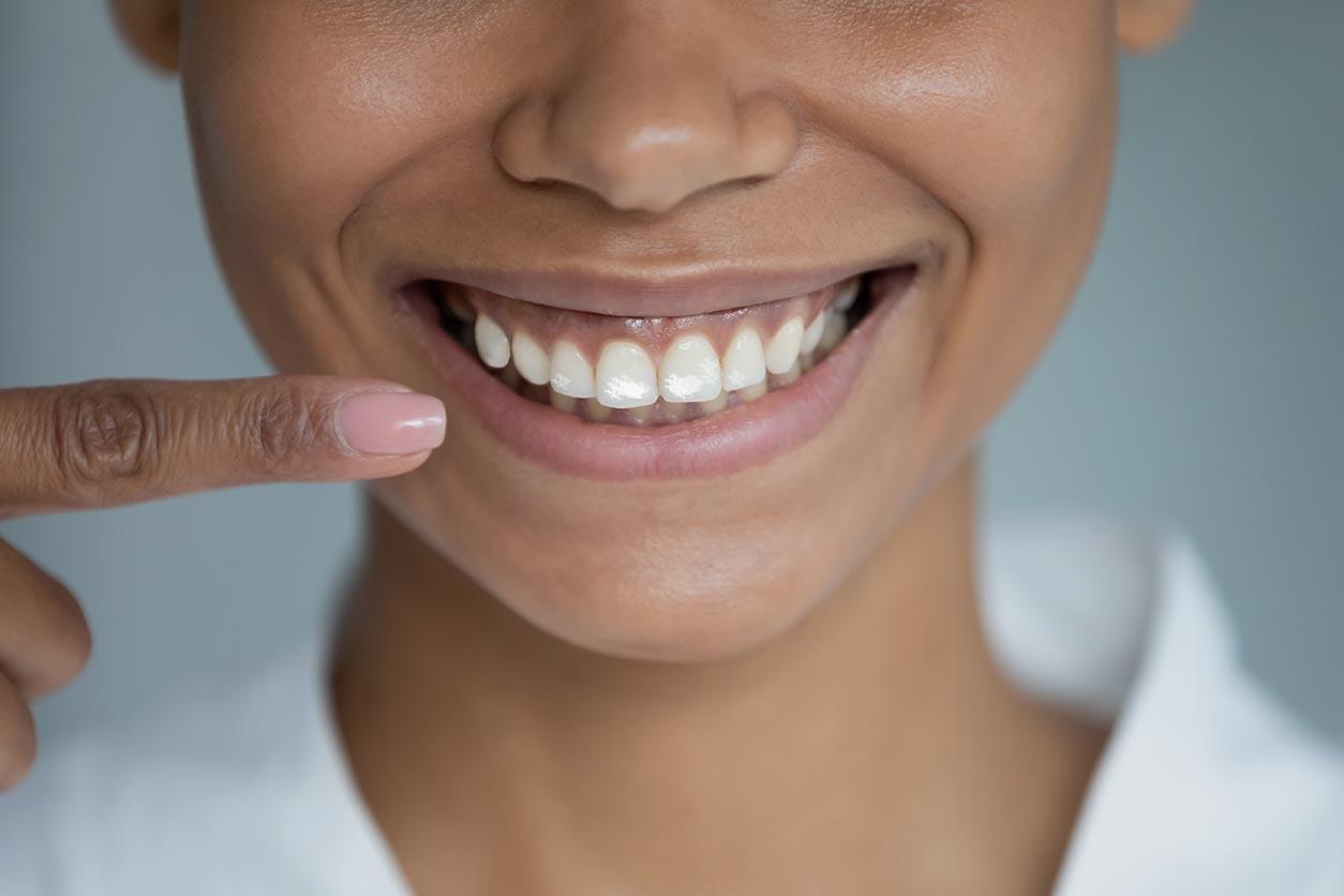 taches blanches sur les dents