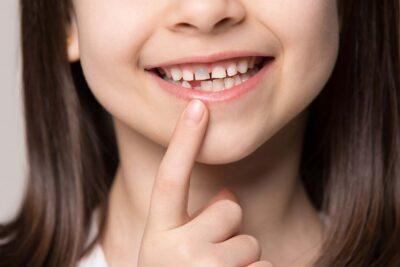 enfant avec dent grise