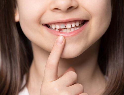 Que faire quand une dent devient grise à la suite d'un choc?